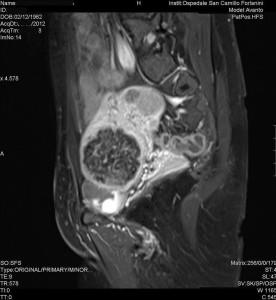 Radiologia Interventistica - Fibroma uterino - caso clinico 2013 - figura 1