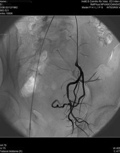 Radiologia Interventistica - Fibroma uterino - caso clinico 2013 - figura 3