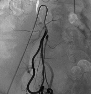 Radiologia Interventistica - Fibroma uterino - caso clinico 2013 - figura 6