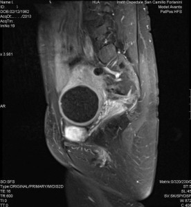 Radiologia Interventistica - Fibroma uterino - caso clinico 2013 - figura 9