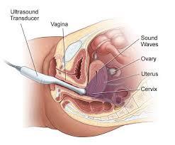 radiologia interventistica-eco transvaginale
