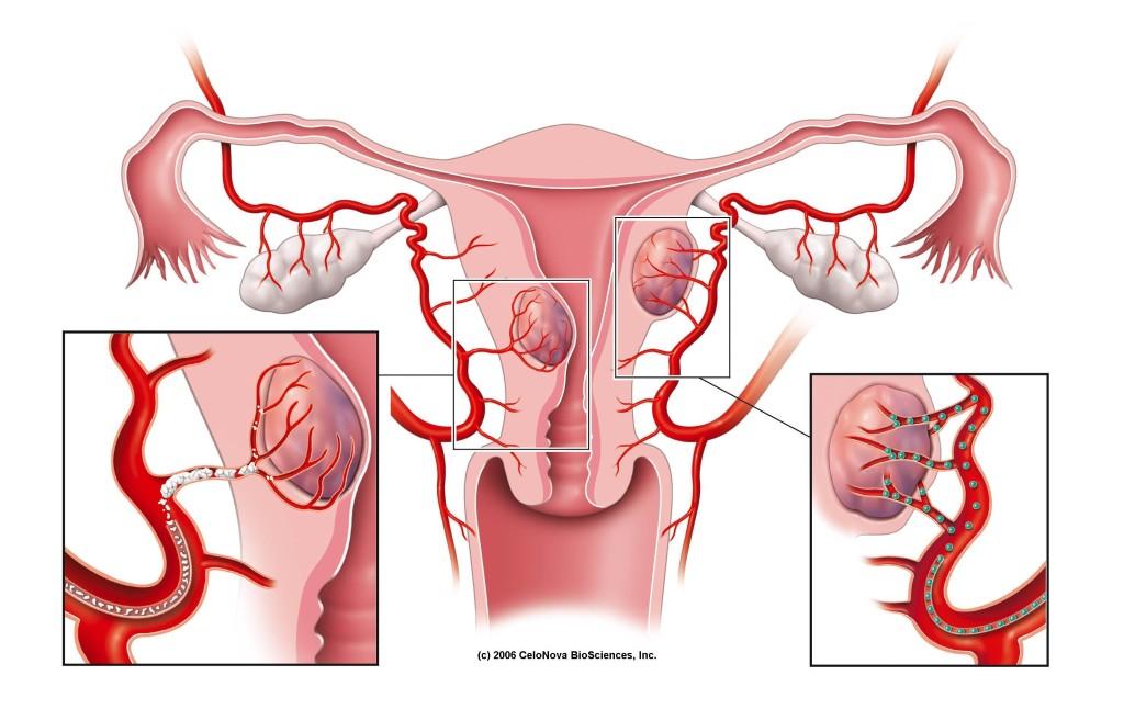radiologia interventistica-embolizzazione-fibroma uterino-confronto sferiche e non sferiche