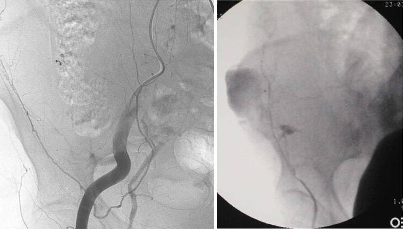 Ematoma muscolo retto - Arteriografia