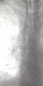 Caso clinico rimozione corpi estranei radiologia interventistica Fig 1a