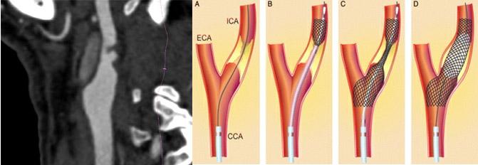 analisi morfologica  TC della placca
