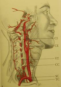 carotid artery stenting cas disegno