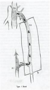 chiva 1 radiologia interventistica