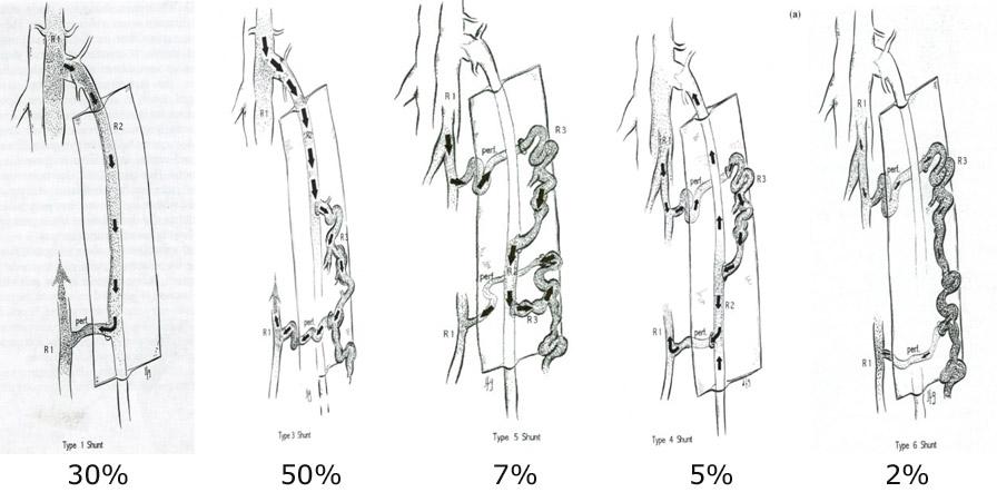 modelli emodinamici vene varicose