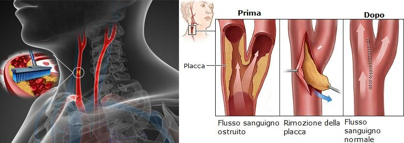 rimozione placca flusso sangue