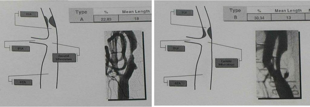 sede lesione 1