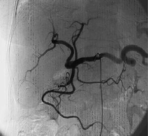 Angiografia selettiva del tripode celiaco