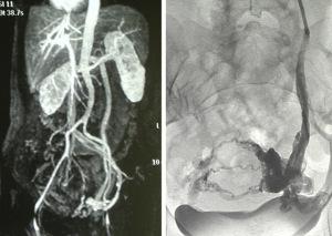 congestione pelvica risonanza magnetica