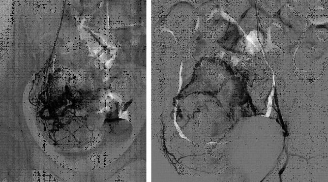 fibroma uterino caso clinico cateterismo