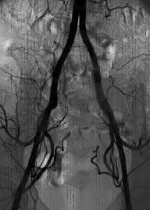 fibroma uterino caso clinico mezzo di contrasto