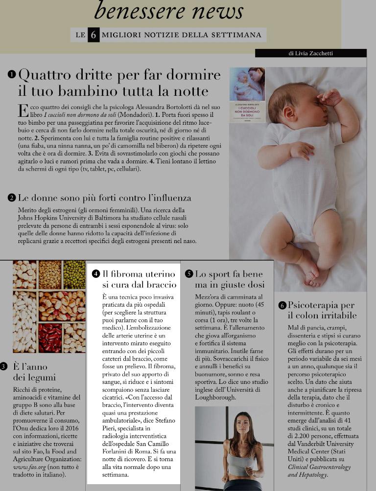 pagina rivista F su fibroma uterino