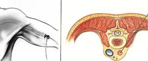 accesso brachiale interventistica