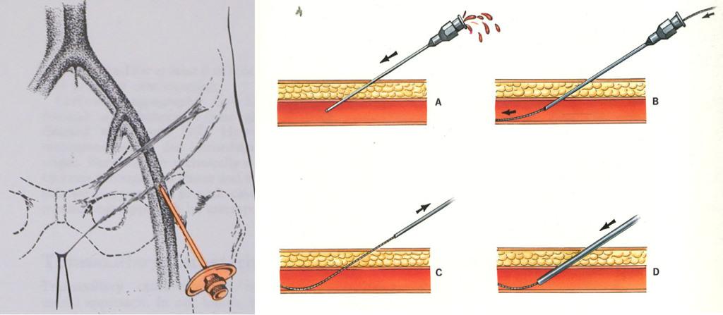 anestesia locale tumori renali