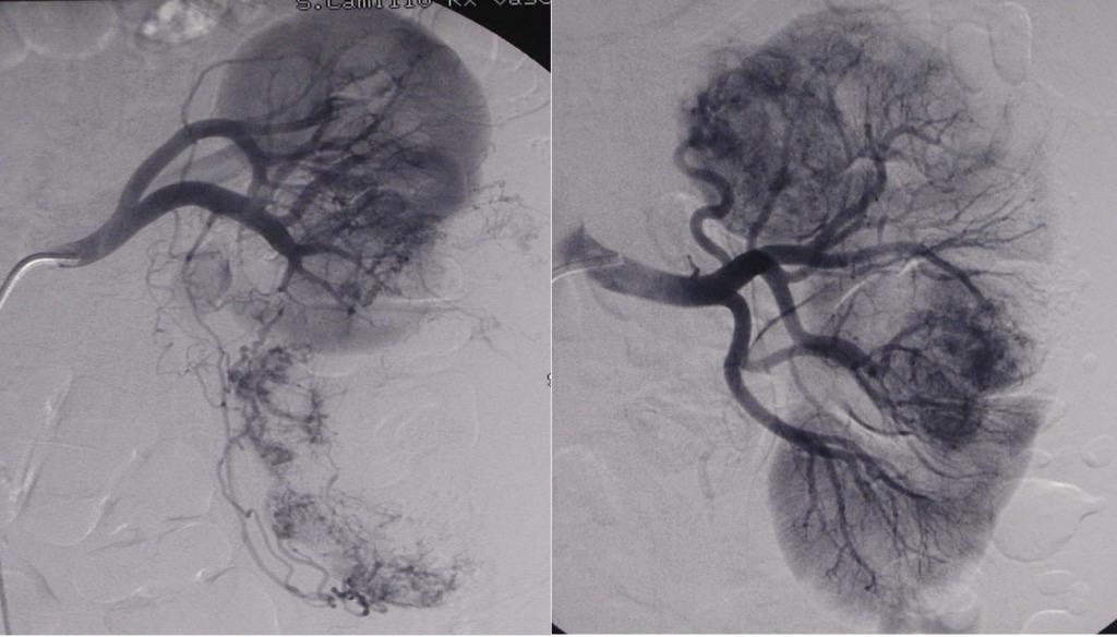 radiologia interventistica tumori renali