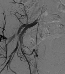 fibroma uterino caso clinico arteriografia selettiva destra