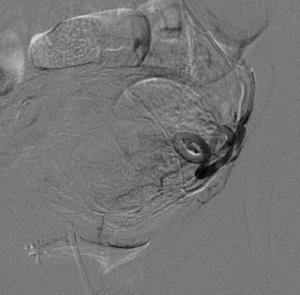 fibroma uterino caso clinico arteriografia selettiva sinistra