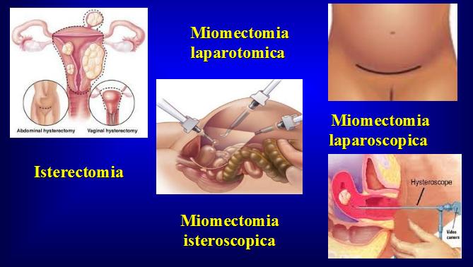Possibili interventi chirurgici sul fibroma uterino