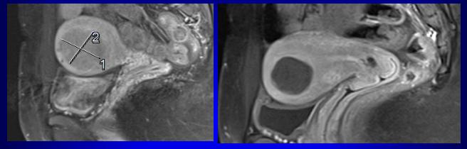 radiografie fibromi uterini e gravidanza
