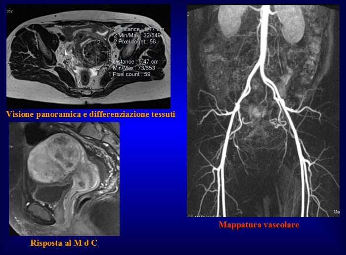 radiografie fibroma uterino