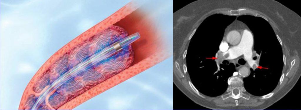Trombolisi assistita dagli ultrasuoni