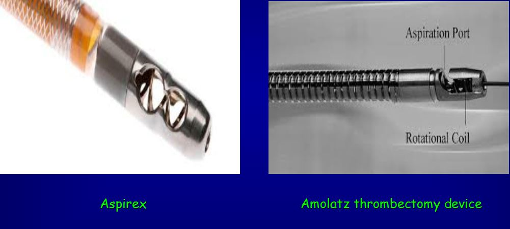 aspirex e amolatz thrombectomy device
