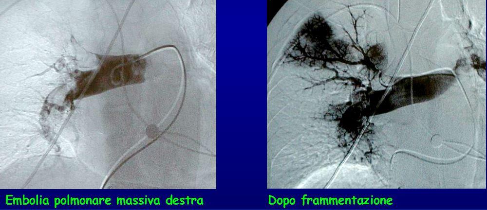 embolia polmonare massiva destra prima e dopo frammentazione
