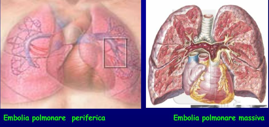 embolia polmonare periferica e embolia polmonare massiva