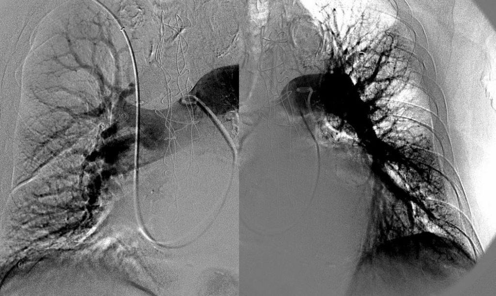 embolia polmonare radiografia caso clinico