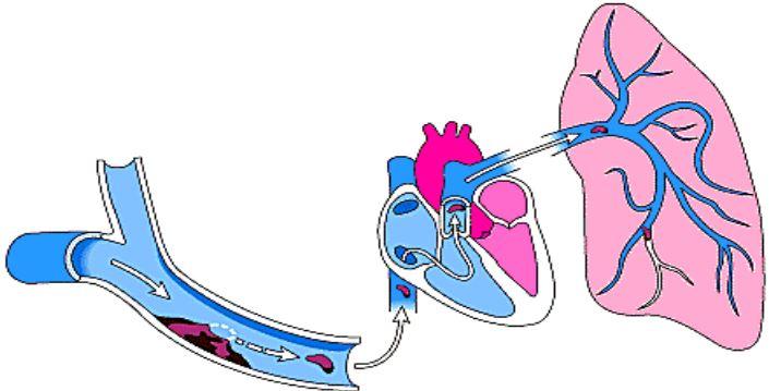 embolo polmonare