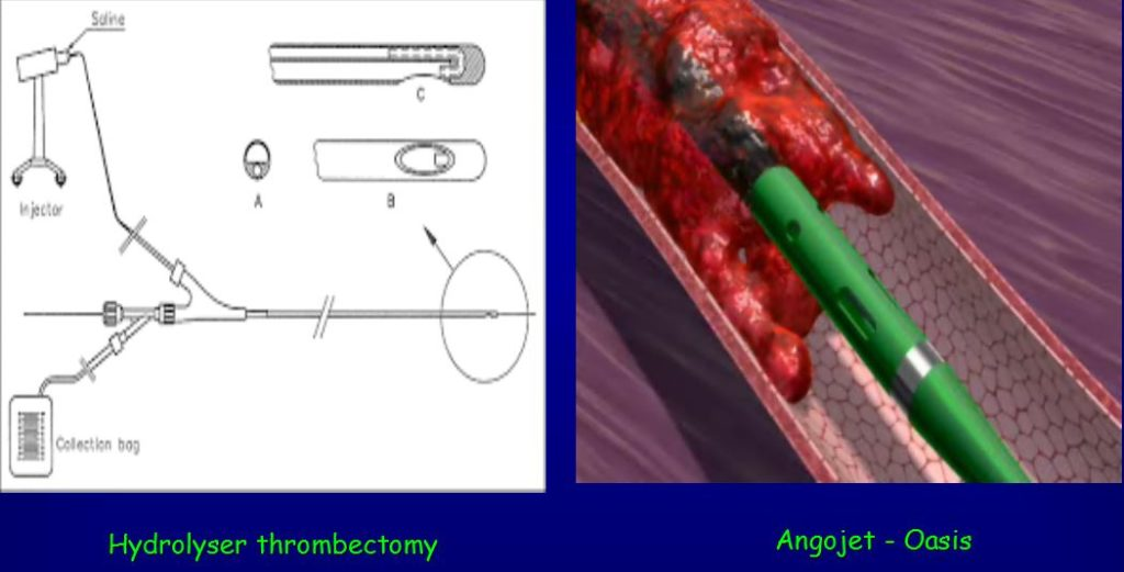 hydrolyser thrombectomy e angojet oasis