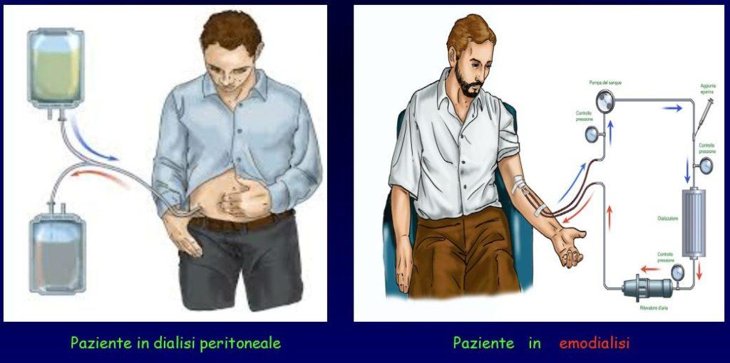 paziente in dialisi peritoneale e paziente in emodialisi