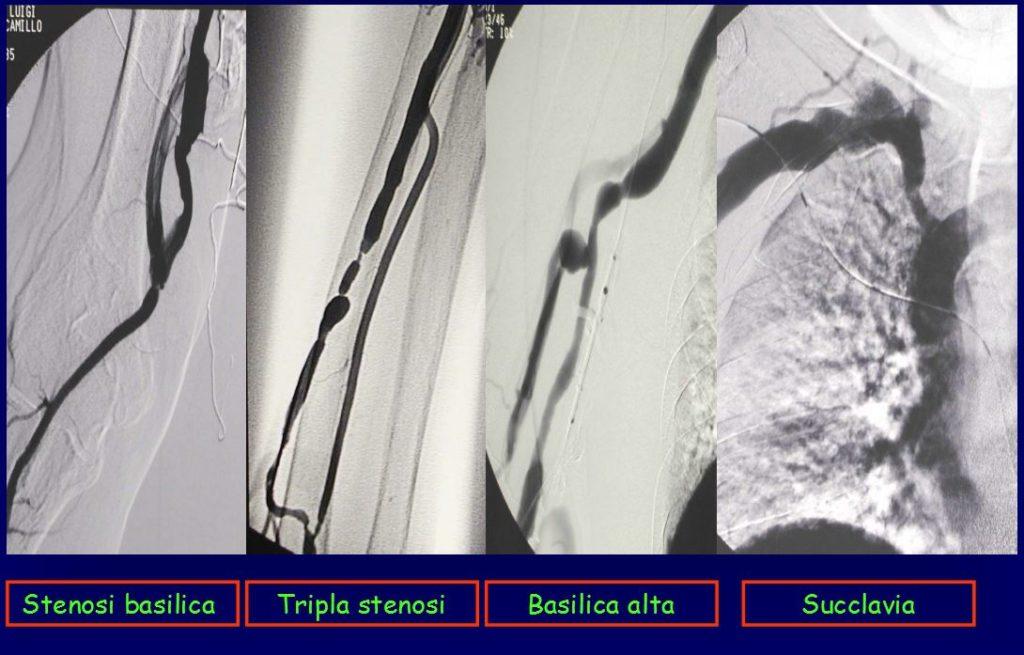 stenosi in pazienti dializzati