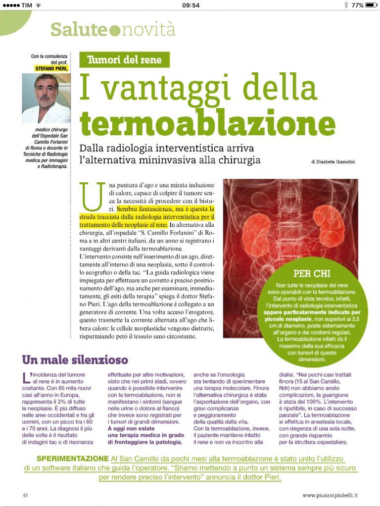 tumore prostata san camillo roma